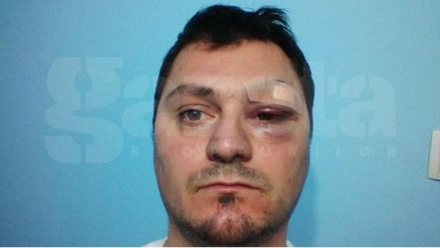 FOTO Fulgerător » Un arbitru a fost lovit de un internaţional român la un turneu amical!