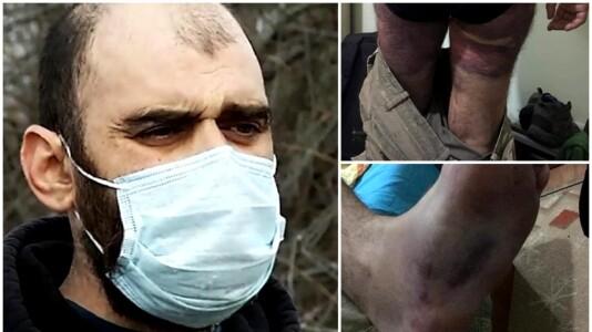 Circumstanțele morții bărbatului bătut de polițiști. Concluzia medicului legist